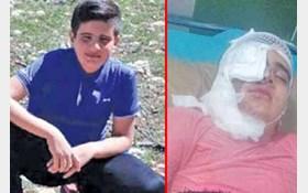 کوچکترین قربانی اسید پاشی ایران کیست
